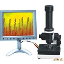手持式微循环检测仪 彩色微循环检测仪 精密高清检测仪